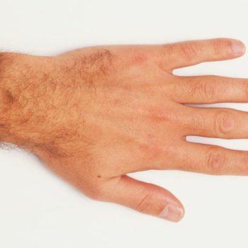 épilation des poils de mains