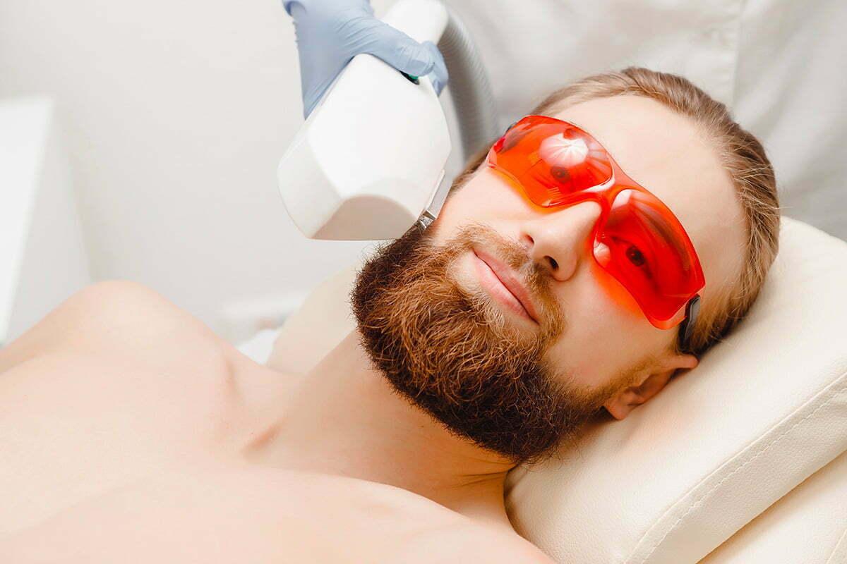 Épilation laser ou électrique pour les poils du visage
